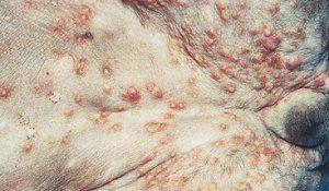 Démodécie compliquée d'une pyodermite